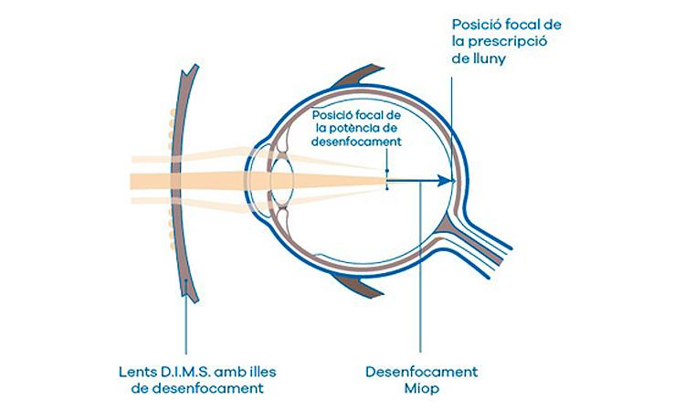 lents ralentitzen miopia